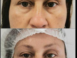 Tratamiento de ojeras-697109