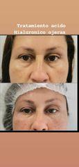 Tratamiento de ojeras - Dra. Katherine Ruiz