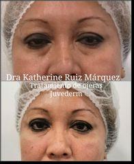 Eliminación de ojeras - Dra. Katherine Ruiz
