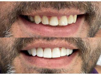 Blanquear dientes - 737817