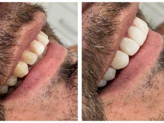 Blanquear dientes - 737818