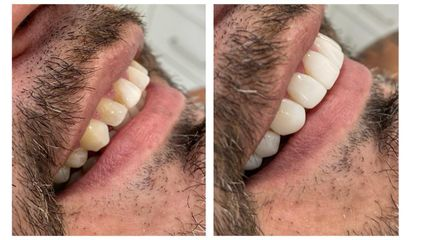 Blanquear dientes - Dra. Katherine Ruiz