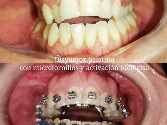 Ortodoncia-739657