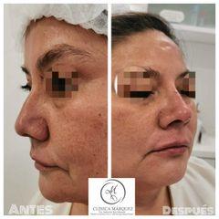 Antes y después de tratamiento de labios