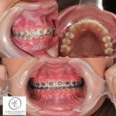 Ortodoncia - Dra. Katherine Ruiz