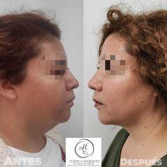 Liposucción Papada - Dra. Katherine Ruiz