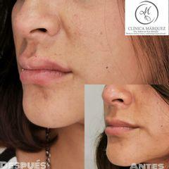 Aumento de labios - Dra. Katherine Ruiz