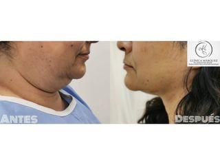 Liposucción de papada - Dra. Katherine Ruiz
