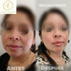 Bolas de bichat - Dra. Katherine Ruiz