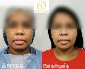 Bichectomía + Lipopapada - Dra. Katherine Ruiz