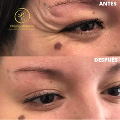Bótox - Dra. Katherin Ruiz Márquez