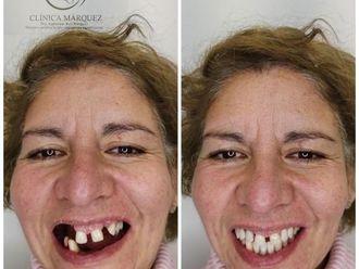 Prótesis dentales-793304