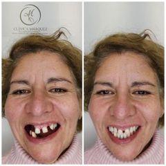 Prótesis dental - Dra. Katherin Ruiz Márquez