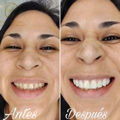 Sonrisa de felicidad -  Dra. Katherin Ruiz Márquez
