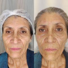 lifting facial - Dra. Katherin Ruiz Márquez