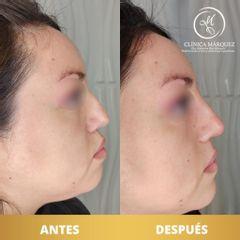 Ácido hialurónico - Dra. Katherin Ruiz Márquez