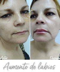 Aumento de labios, ácido hialurónico - Dra. Katherin Ruiz Márquez