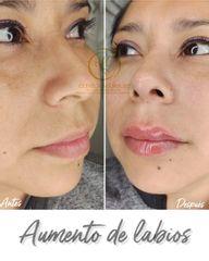Aumento de labios - Dra. Katherin Ruiz Márquez