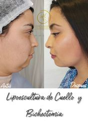 Liposucción - Dra. Katherin Ruiz Márquez