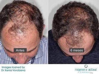 Alopecia - 629168