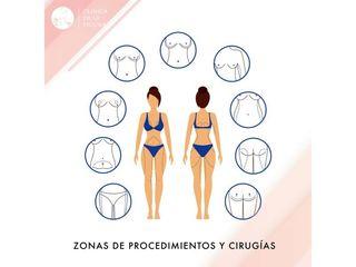 Zonas de procedimiento y cirugías