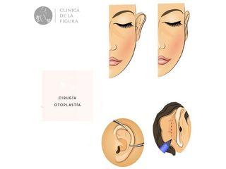 Clínica de la Figura - Otoplastía