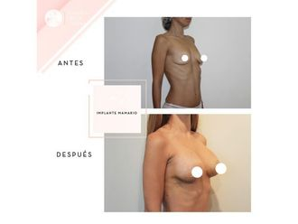 Aumento mamario - 661946