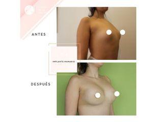 Clínica de la Figura - Implante mamario
