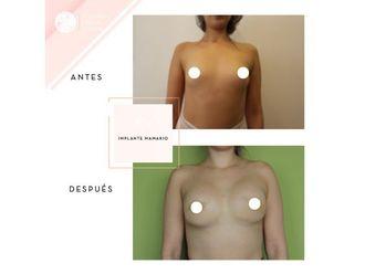 Aumento mamario - 661953