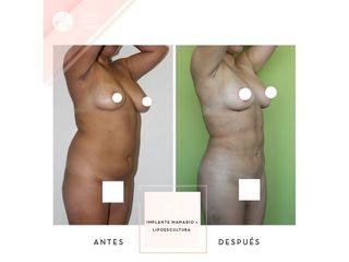 Clínica de la Figura - Implante mamario + Lipoescultura
