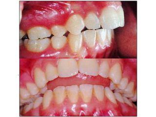 Disfunción mandibular