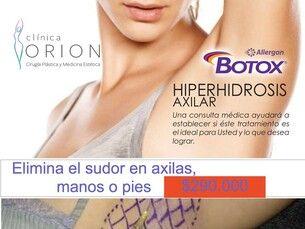 ¿Sudor Excesivo? Elíminalo con Botox (toxina botulínica) $290.000
