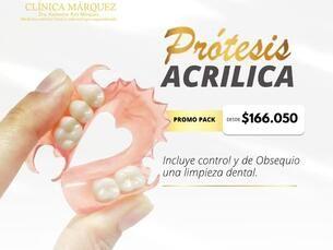 Protesis acrilicas  promo pack desde $166.050
