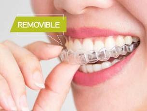 Ortodoncia invisible y removible