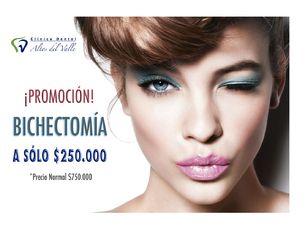 Bichectomía $250.000