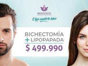 Bichectomía + lipo papada