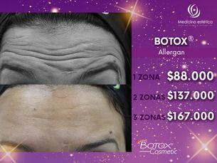 Botox original al mejor precio
