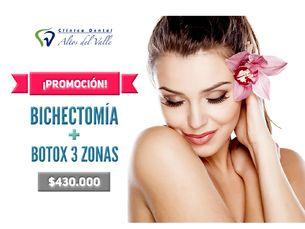 Bichectomía + Bótox 3 Zonas $430.000