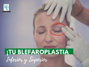 👍 ¡Promoción! Blefaroplastía.desde $650 000 pesos