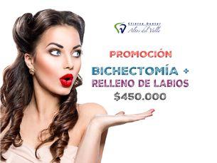 Bichectomía + Relleno de Labios $450.000