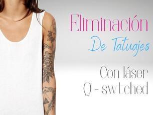 Eliminación de Tatuajes con Láser Q-Swtched Nd Yag