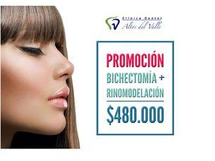 Bichectomía + Rinomodelación $480.000