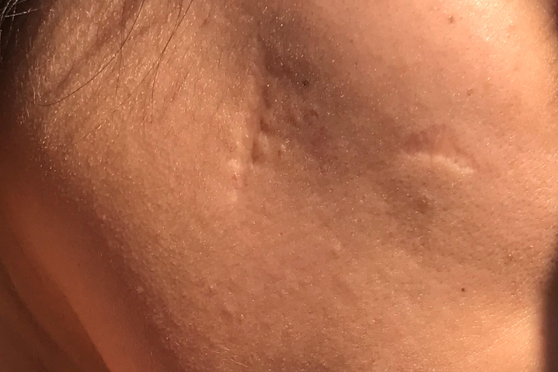 Cicatrices en mi rostro - 5641