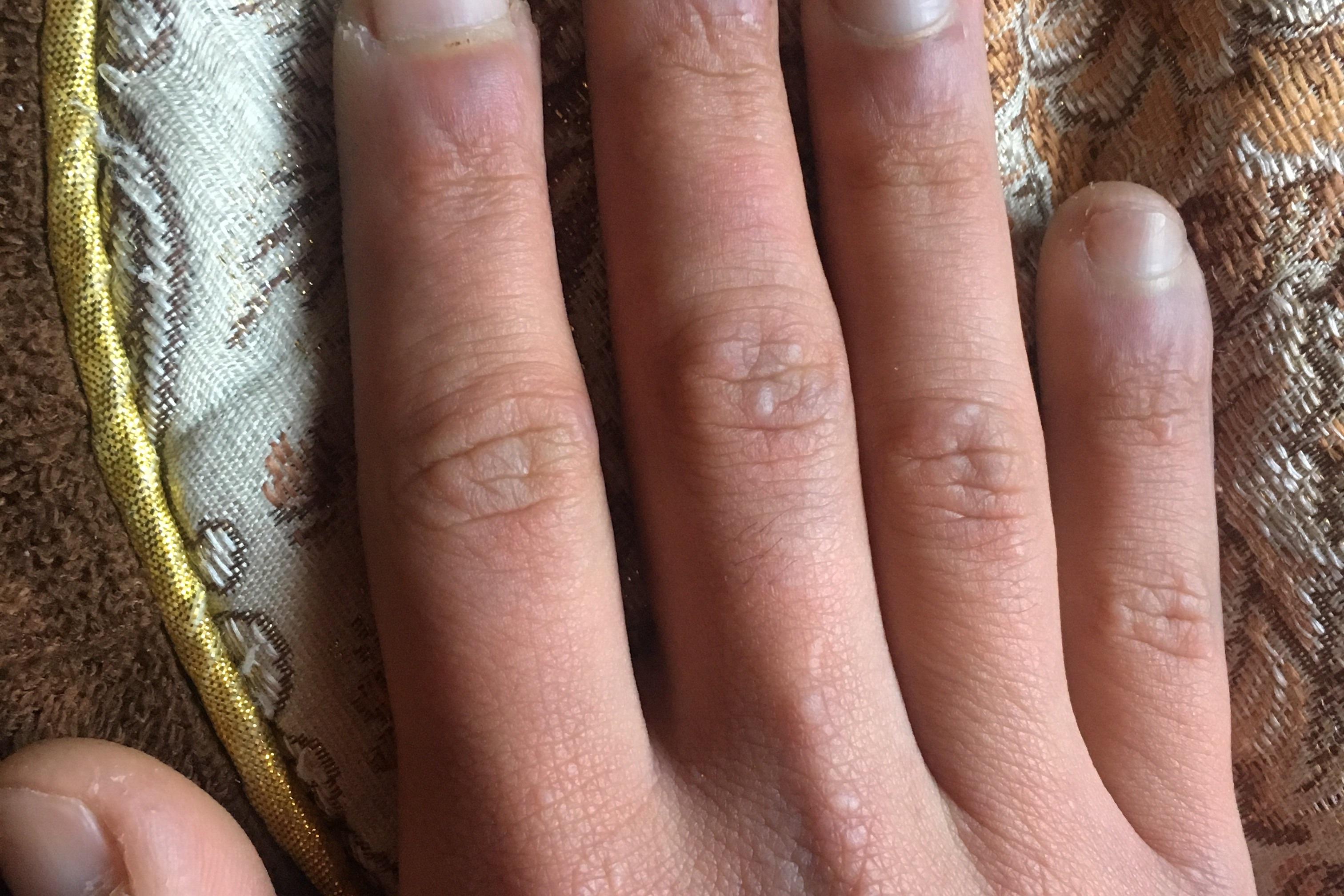 Cirugia dedos de manos - 5673