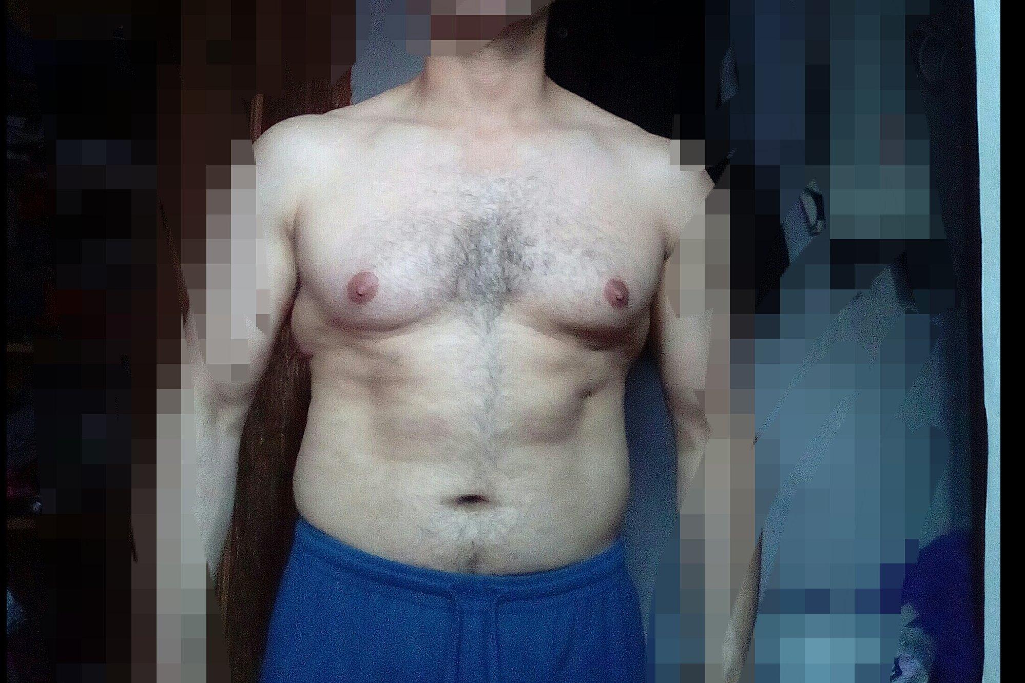 Me gustaria saber si tengo ginecomastia y si es nesesario realizar una cirujia - 6045