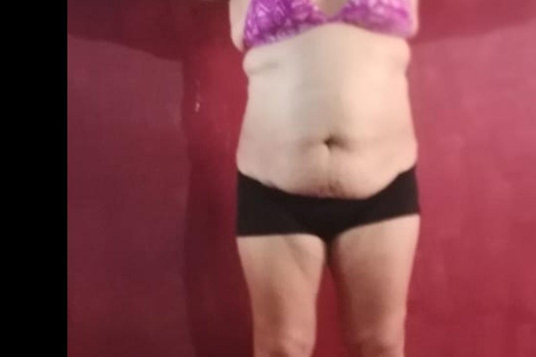 Quiero realizar implante mamario y lipo de torso con transferencia glutea - 6367