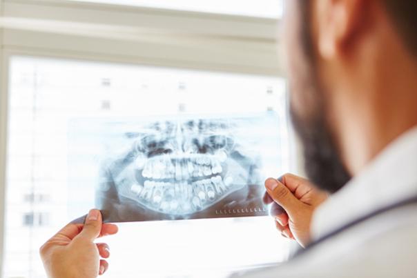 cirugia maxilofacial preoperatorio