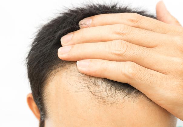 Factores caída del cabello