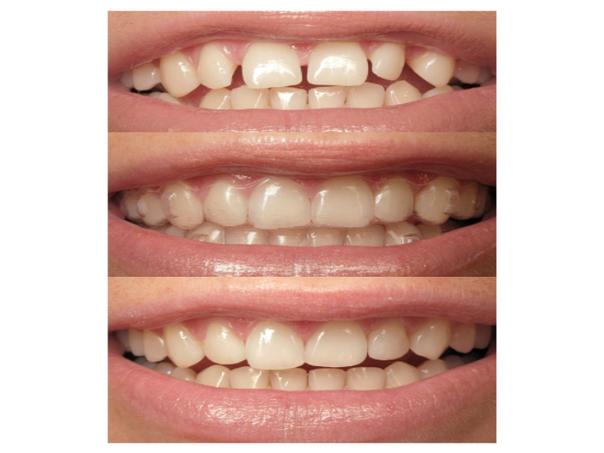 Antes y después de ortodoncia invisible