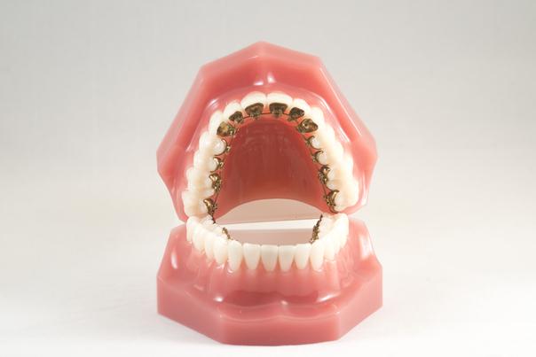 corregir la posición dental